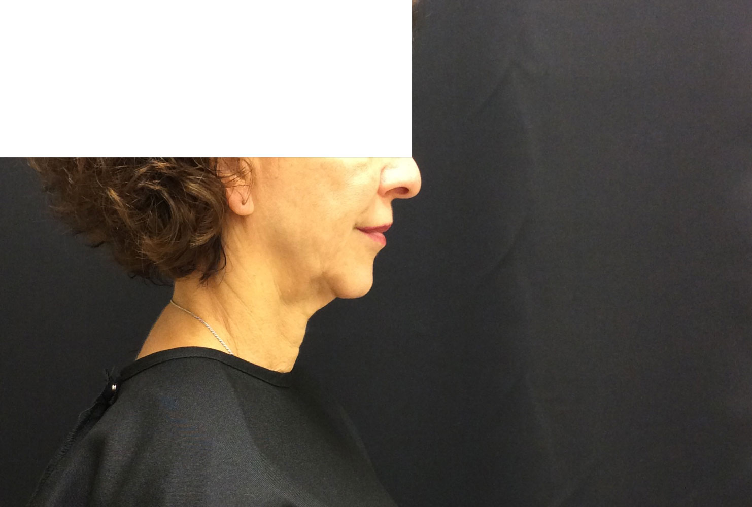 Neck before from Ultherapy before and after procedure provided by Dr. Scott Hernberg of Tomorrow's Wellness Center, NJ's premier med spa.
