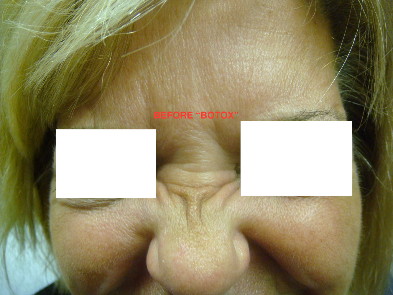 Woman's nose before from Botox treatment before and after procedure provided by Dr. Scott Hernberg of Tomorrow's Wellness Center, NJ's premier med spa.